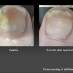 Toenail Fungus Laser Treatment in Oakland, CA